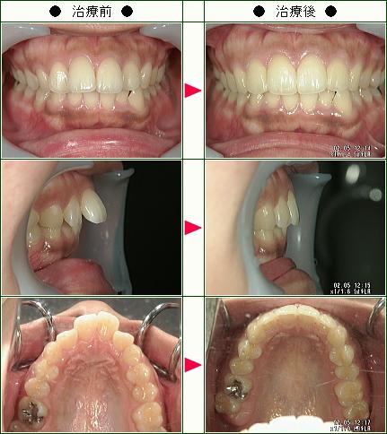 出っ歯矯正症例(S.K様 23歳 女性)