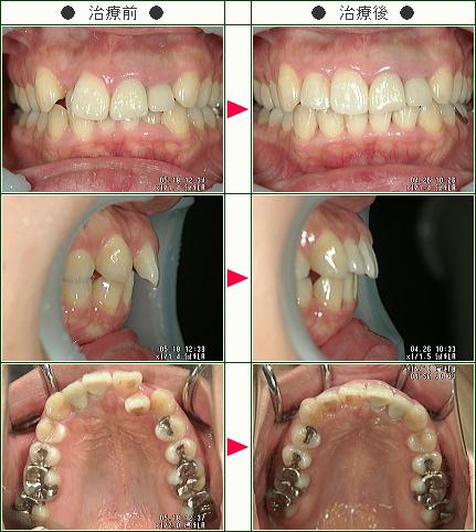 歯のデコボコ矯正症例(S・K様 32歳 女性)