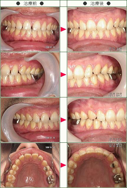 前歯のすきっ歯矯正症例(S.K.様 38歳 男性)