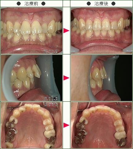 出っ歯矯正症例(S.K様 48歳 男性)