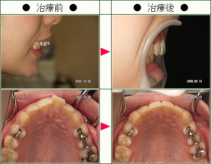 歯のデコボコ矯正症例(S.M.様 22歳 女性)