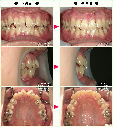 歯のデコボコ矯正症例(S・M様 25歳 女性)