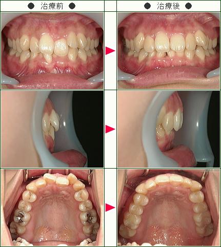 歯のデコボコ矯正症例(S.M様 28歳 女性)