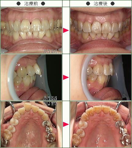 歯のデコボコ矯正症例(S・M様 43歳 女性)