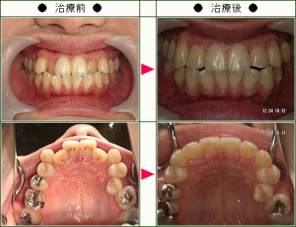 歯のデコボコ矯正症例(S.N.様 24歳 女性)