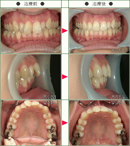 歯のデコボコ矯正症例(そのだ様 31歳 女性)