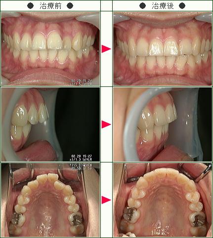 歯のデコボコ矯正症例(S.S様 21歳 女性)