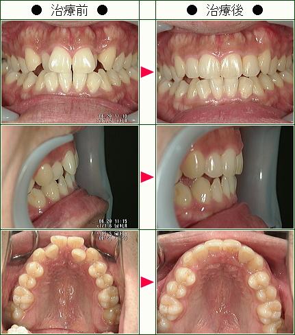 歯のデコボコ矯正症例(S・S様 27歳 男性)