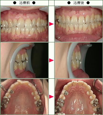 歯のデコボコ矯正症例(S.T様 41歳 女性)