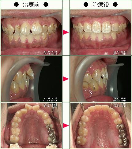 歯のデコボコ矯正症例(須藤様 31歳 男性)