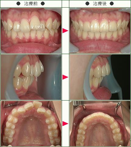 歯のデコボコ矯正症例(菅野様 19歳 女性)