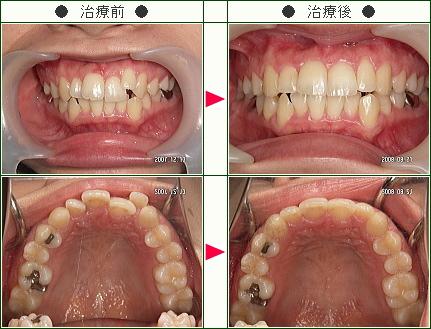 歯のデコボコ矯正症例(スギウラ様 26歳 女性)