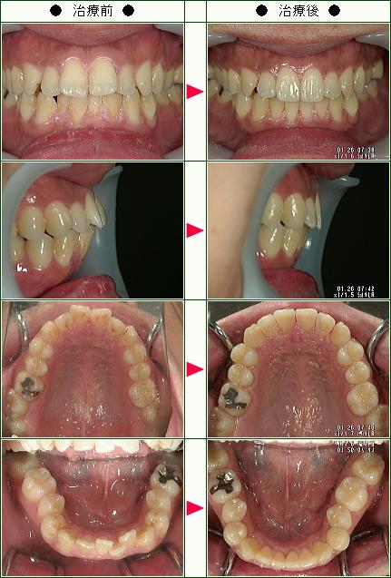 歯のデコボコ矯正症例(T様 32歳 男性)