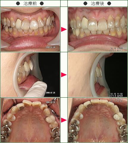 歯のデコボコ矯正症例(T様 42歳 女性)
