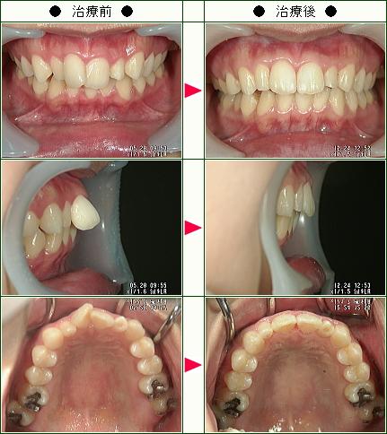 歯のデコボコ矯正症例(T・A様 25歳 女性)