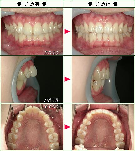 出っ歯矯正症例(タカハシ様 21歳 女性)