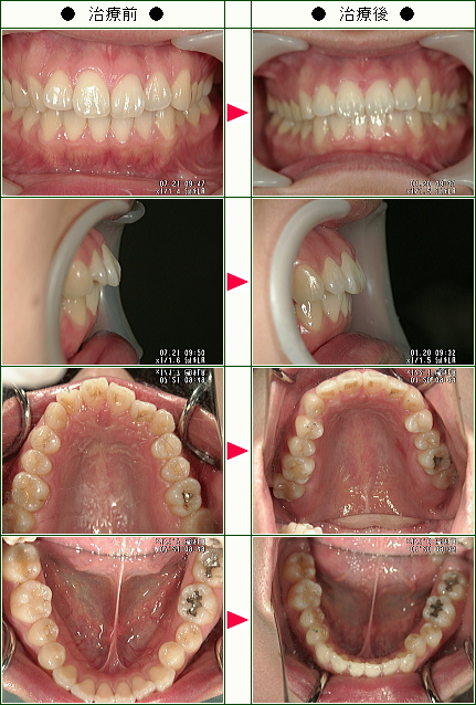出っ歯矯正症例(たかはし様 25歳 女性)
