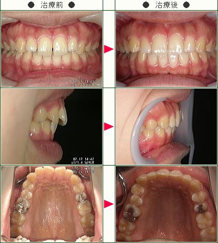 前歯のすきっ歯矯正症例(竹内様 26歳 女性)