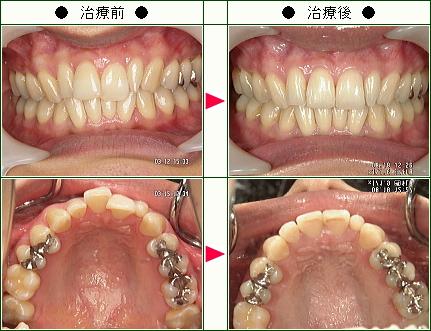 歯のデコボコ矯正症例(竹内様 31歳 女性)