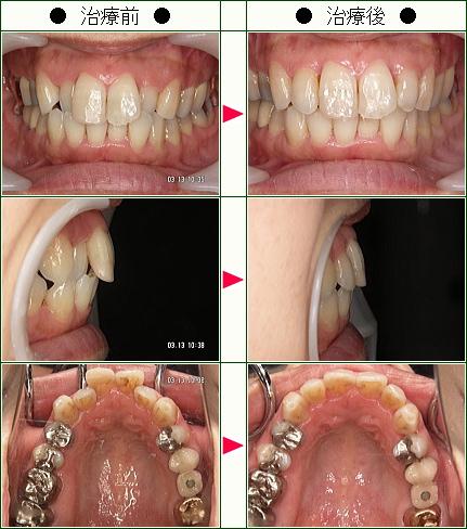 歯のデコボコ矯正症例(田中様 45歳 女性)