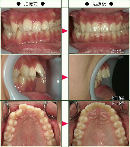 歯のデコボコ矯正症例(T.H様 19歳 男性)