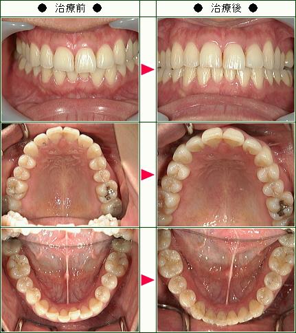 歯のデコボコ矯正症例(T.K様 30歳 女性)