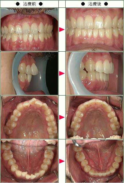 歯のデコボコ矯正症例(T.K様 32歳 男性)