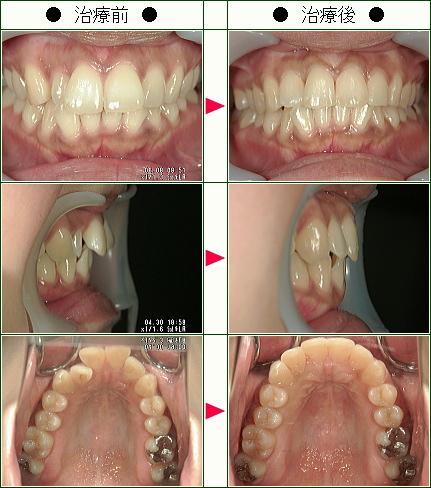 歯のデコボコ矯正症例(T.K様 34歳 女性)