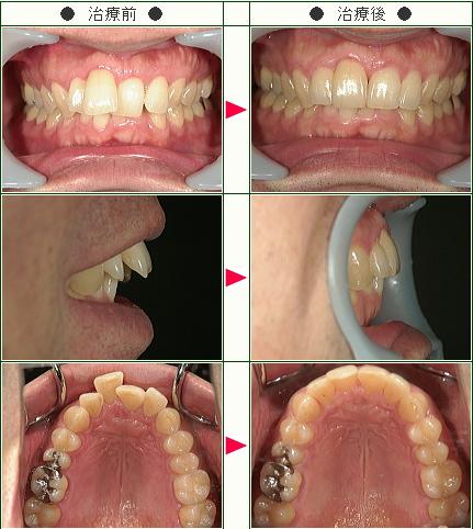 歯のデコボコ症例(T.N様 46歳 男性)