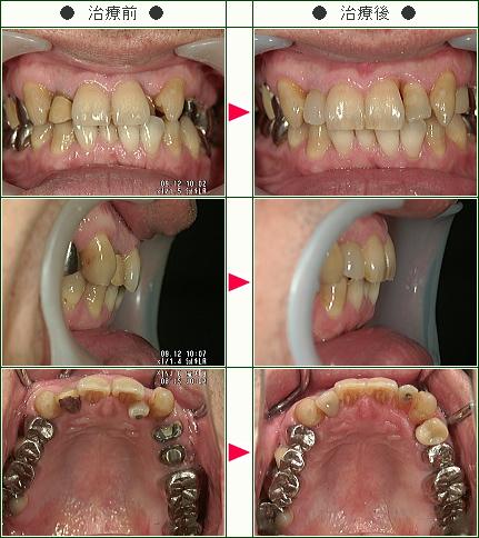 歯のデコボコ矯正症例(T・N様 46歳 男性)