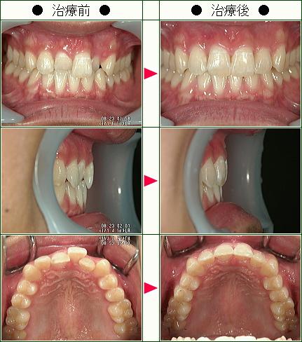 歯のデコボコ矯正症例(T・O様 18歳 男性)