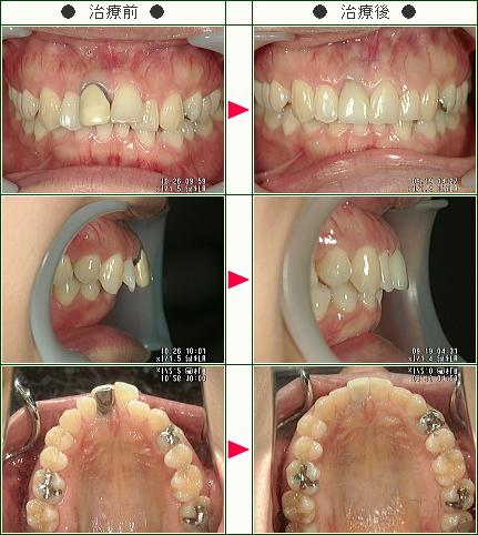 出っ歯矯正症例(T.S様 29歳 女性)