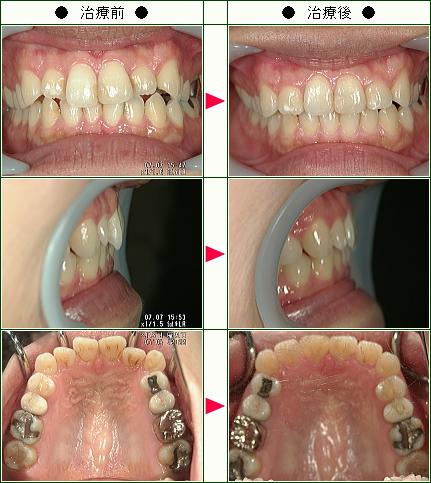 歯のデコボコ矯正症例(津田様 29歳 女性)