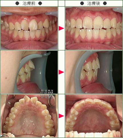 歯のデコボコ症例(T.Y様 15歳 男性)