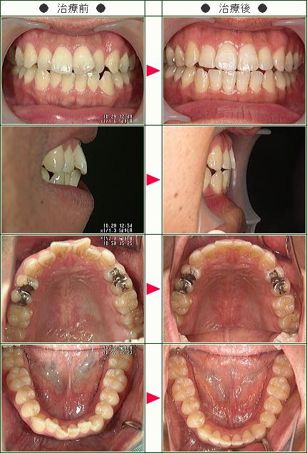 歯のデコボコ矯正症例(T・Y様 31歳 男性)