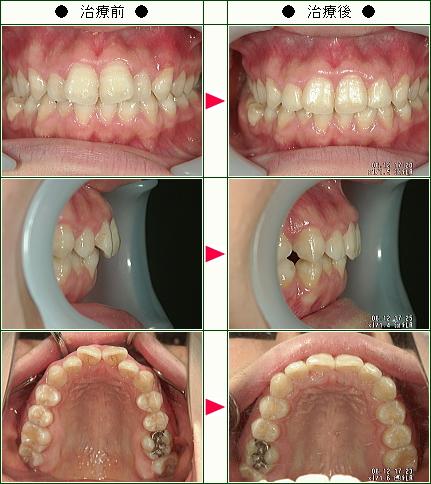 歯のデコボコ矯正症例(上野様 18歳 女性)