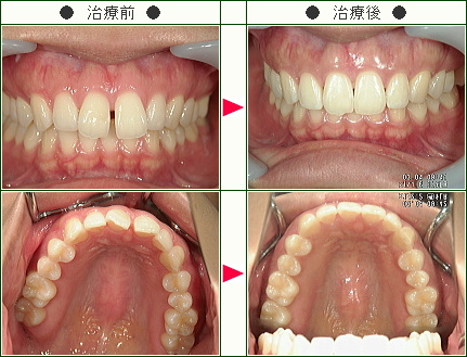 前歯のすきっ歯矯正症例(U.S様 27歳 女性)