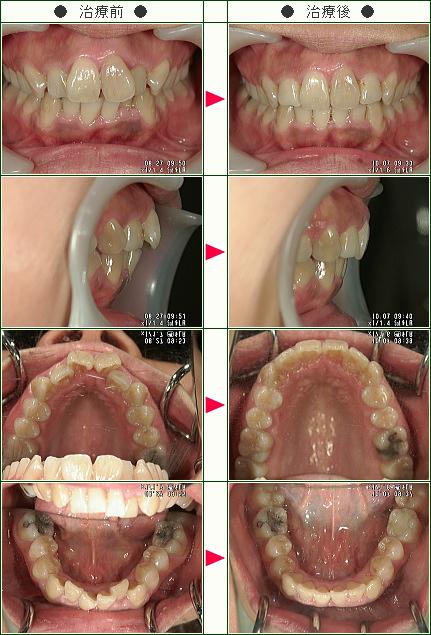 歯のデコボコ矯正症例(U史織様 34歳 女性)