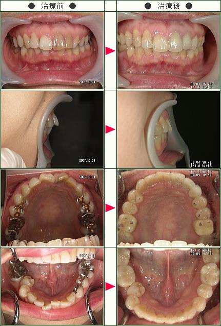 歯のデコボコ矯正症例(W様 女性)