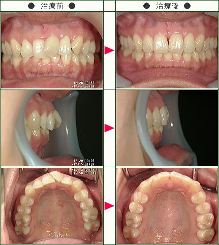 歯のデコボコ矯正症例(脇田様 37歳 女性)