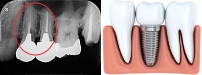 パントモでの失活歯とインプラントの写真と説明