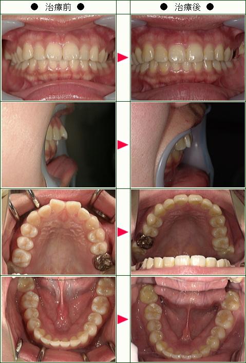 出っ歯矯正症例(わわわ様 22歳 女性)