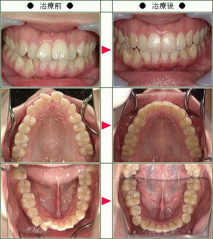 出っ歯矯正症例(W.Y様 21歳 女性)