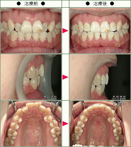 歯のデコボコ矯正症例(XiXi様 28歳 女性)