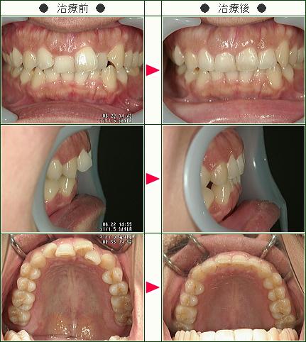 歯のデコボコ矯正症例(Y様 34歳 女性)