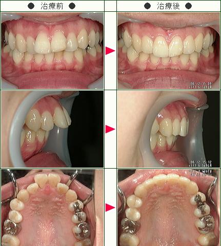 出っ歯矯正症例(Y.A様 25歳 女性)