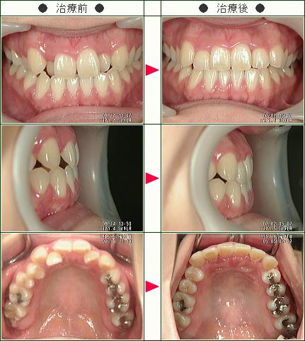 歯のデコボコ矯正症例(矢口様 29歳 女性)