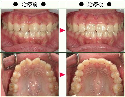 歯のデコボコ矯正症例(やはた様 19歳 女性)