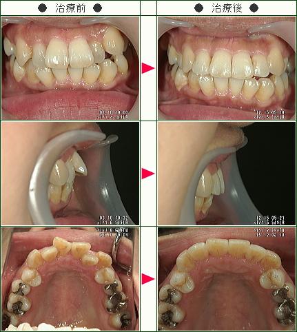 歯のデコボコ症例(山田様 46歳 女性)