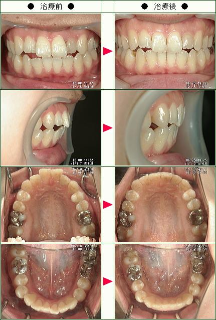 歯のデコボコ矯正症例(ヤマザキ様 22歳 女性 )
